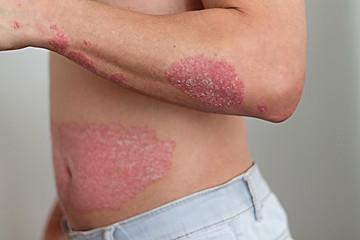 Man with psoriasis on body